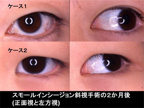 斜視 治し 方 内 内斜視を治すには?再発防止は眼球トレーニングが効果的